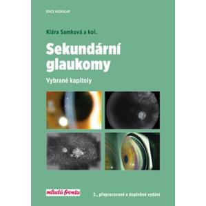 Sekundární glaukomy | Klára Samková